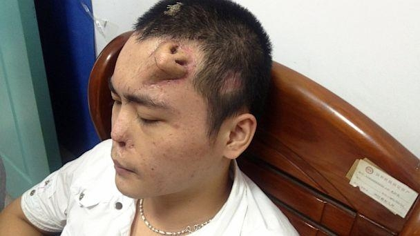 Picture of Man with Nose on his Forehead in China