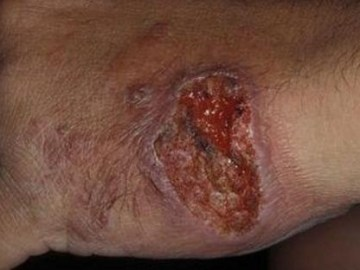 Picture Warning Syrian Refugees Spreading a Flesh-Eating Disease into the United States