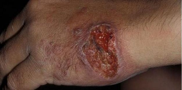 Syrian Refugees Spreading a Flesh-eating Disease into the United States: Facts