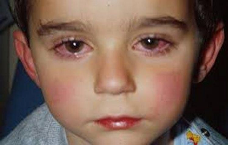 Picture Showing a case of Trachoma (Granular Conjunctivitis)