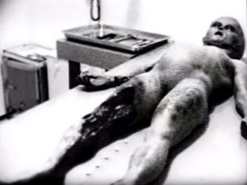 Picture: Real Footage of an Autopsy on a Roswell Alien Exists