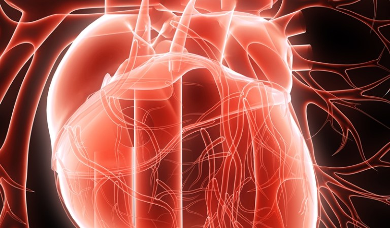 Chelation Therapy Removes Heart Blocks Avoiding Bypass Surgery: Fact Check