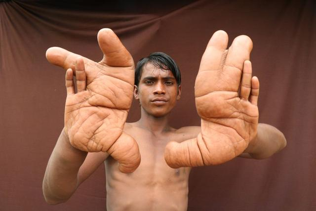 Image of Boy with Giant Hands that Grew 12 Inches Long