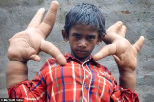 Image of Mohammad Kaleem with large hands
