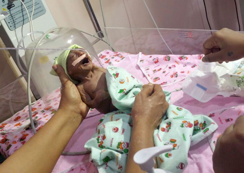 Image of Premature baby girl born in seventh month with rare skin condition in India