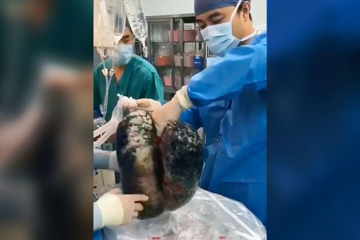 Image from Shocking Video of Lungs Blackened After Decades of Smoking
