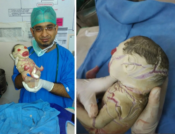 Images of Baby girl born with Harlequin Ichthyosis in Nagpur
