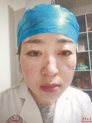 Image of Medical staff with bruises on face after working on Coronvirus epidemic