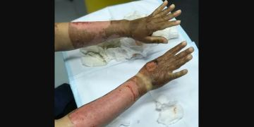 Image about Lady Applied Sanitizer on Her Arms, Caught Fire in Kitchen
