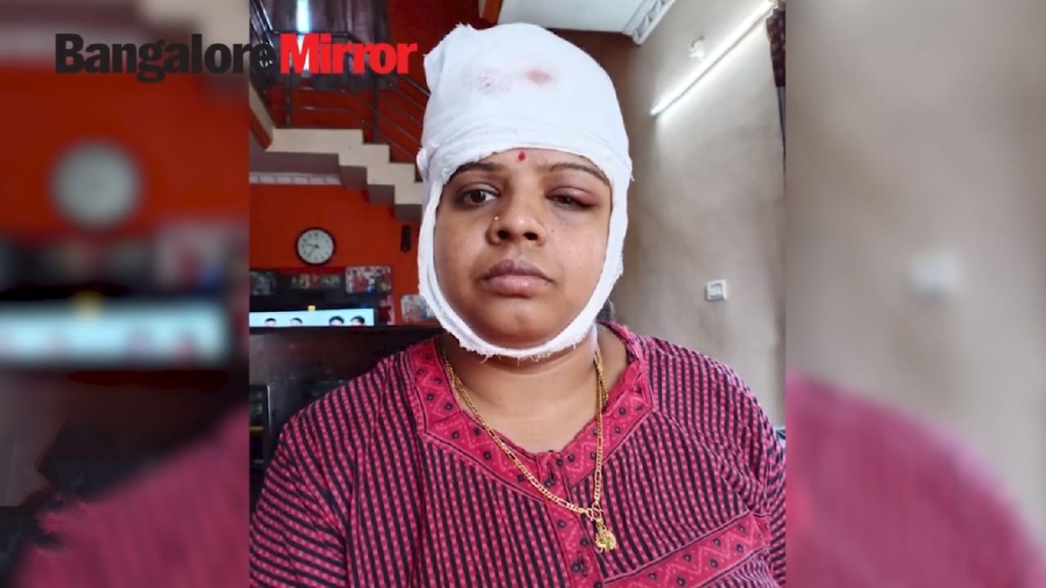 Image of Hotelier Sunita injured in the accident