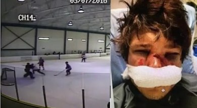 Beer League Goalie Slashes Player In Face
