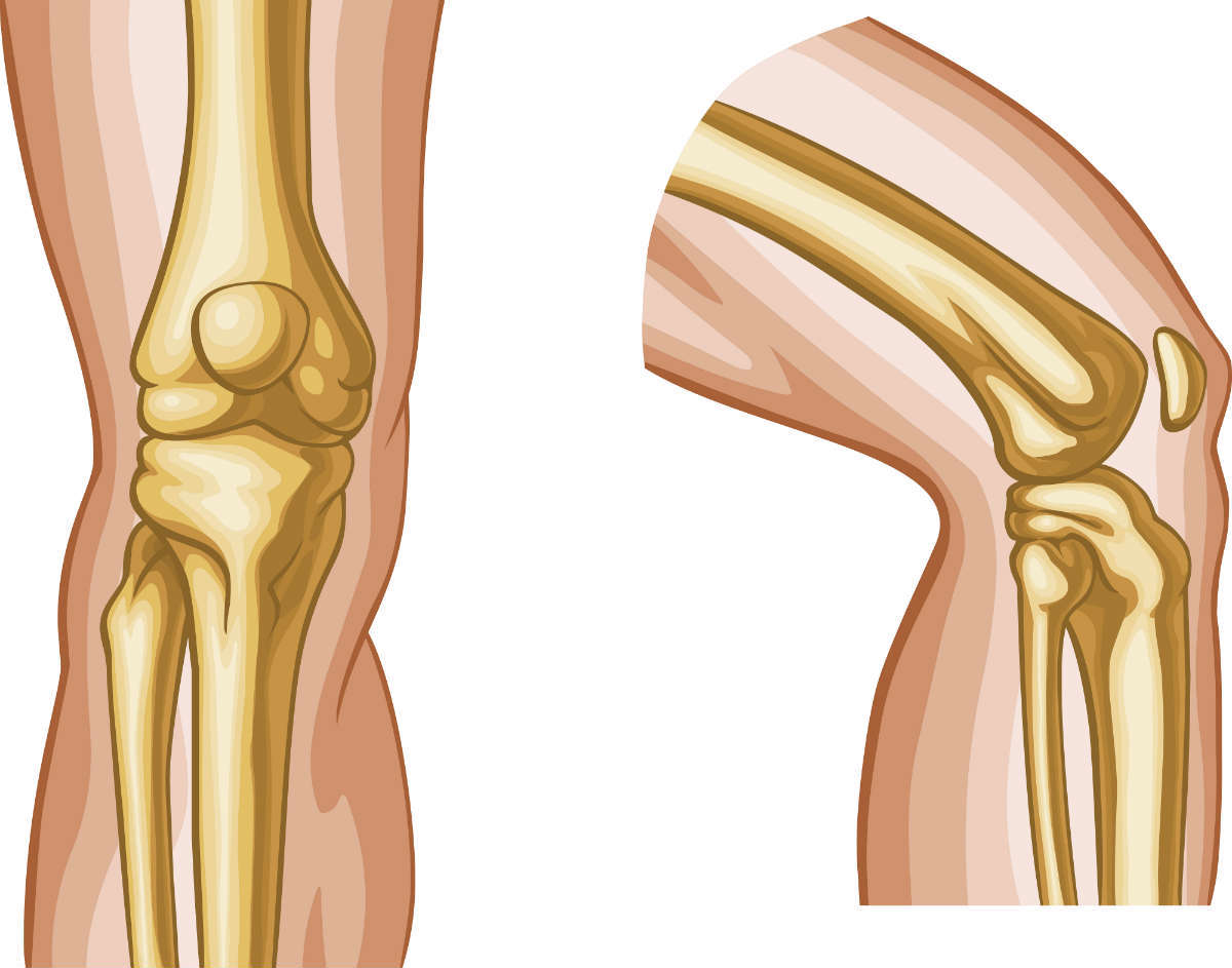 Ligament Injury From Car Accident