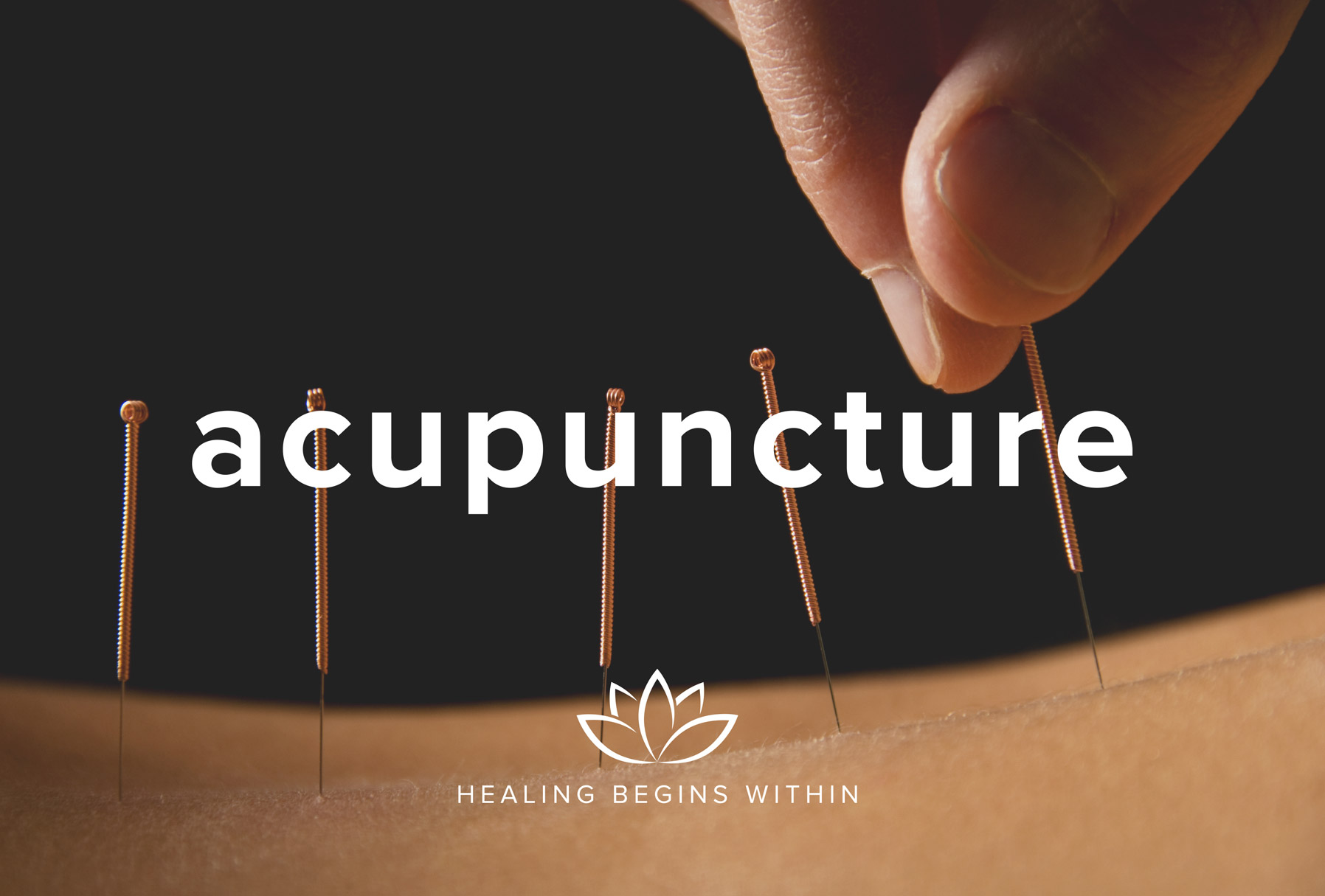 Weight Loss From Acupuncture