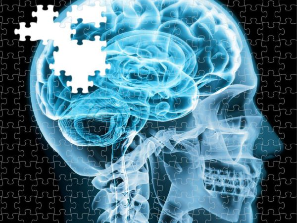Alzheimer's is a diabetic disorder of the brain, researchers find