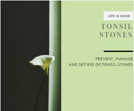 Tonsil Stones (video) + 25 Articles FREE
