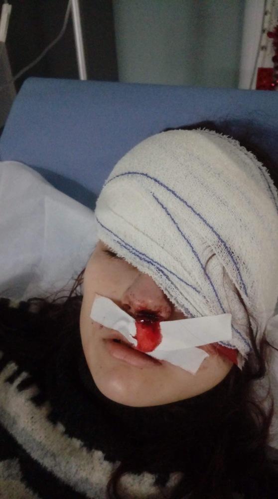 bandaged eye in hospital