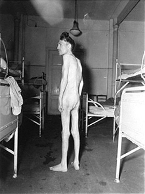 An emaciated survivor stands naked between rows of beds at the Hadamar Institute