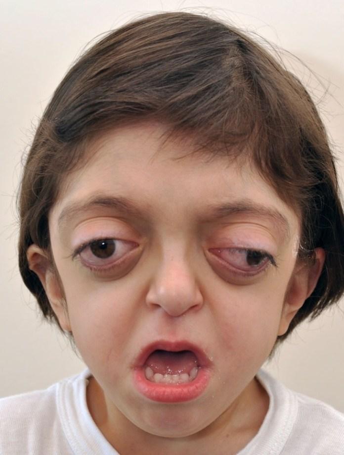 Síndrome de Crouzon