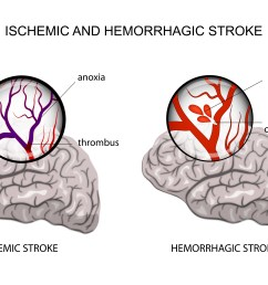 ischemic and hemorrhagic stroke pinterest [ 3000 x 2000 Pixel ]