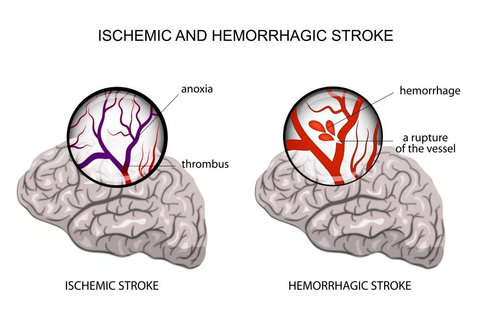 medium resolution of ischemic and hemorrhagic stroke pinterest