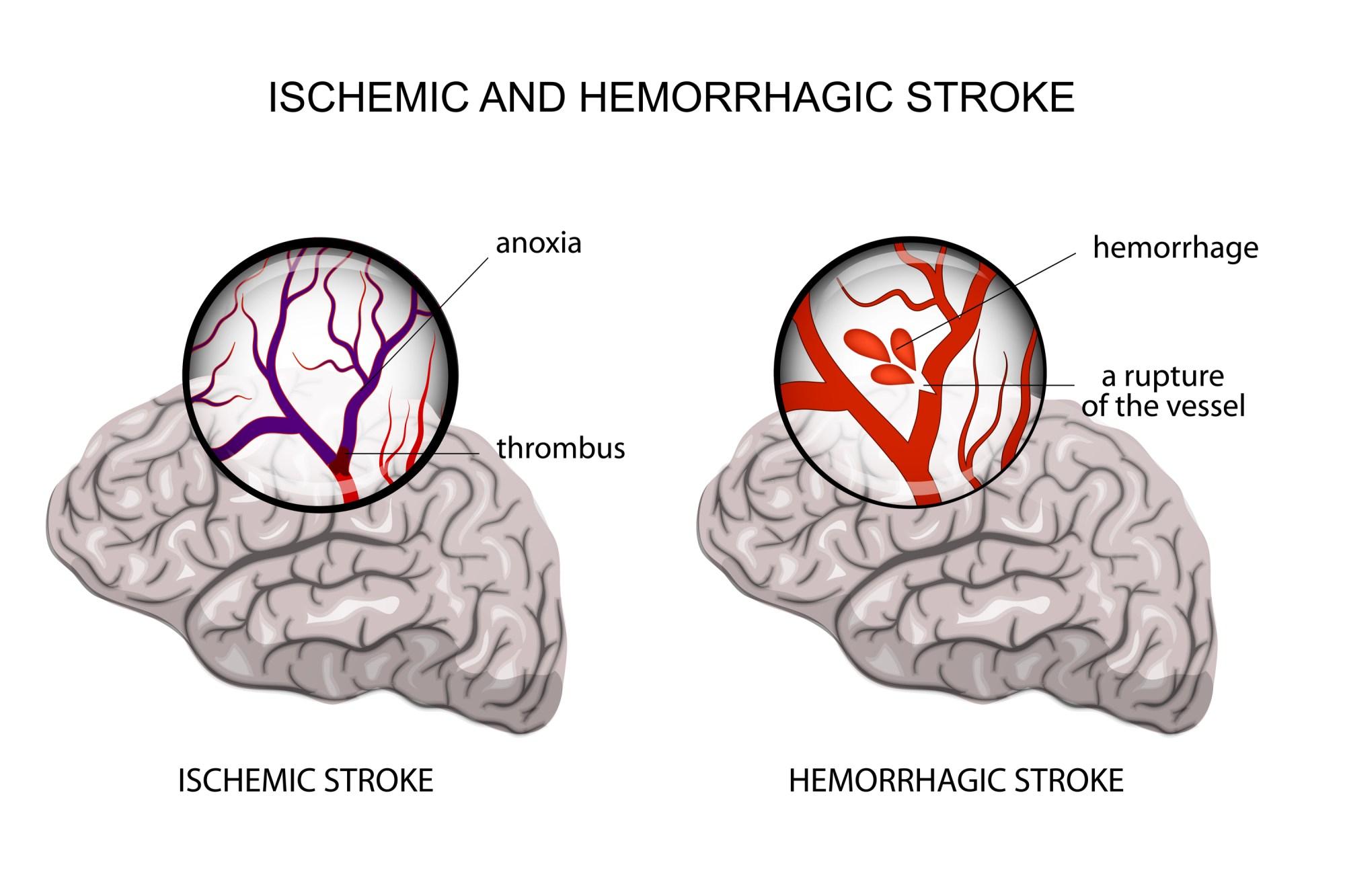 hight resolution of ischemic and hemorrhagic stroke pinterest