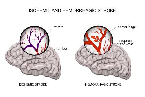 small resolution of ischemic and hemorrhagic stroke pinterest