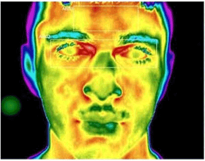 Thermal Imaging Camera Solutions_Homeland Safety Systems Inc_No Contact Fever Screening Device
