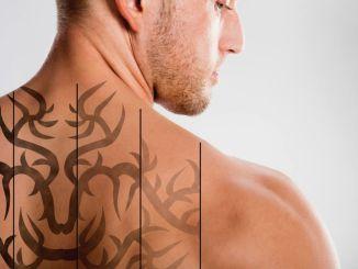 Remoção de tatuagem tattoo laser - Homem No Espelho