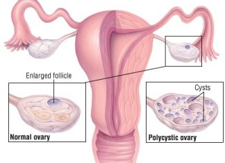 Natural cures for polycystic ovary syndrome