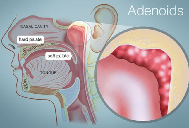 enlarged adenoids