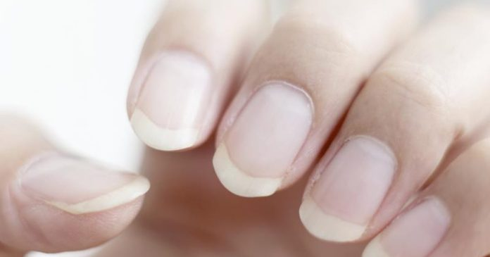 weak nails home remedy