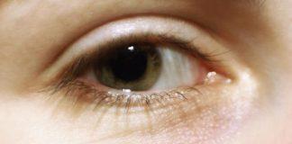 Eyelash loss symptom causes