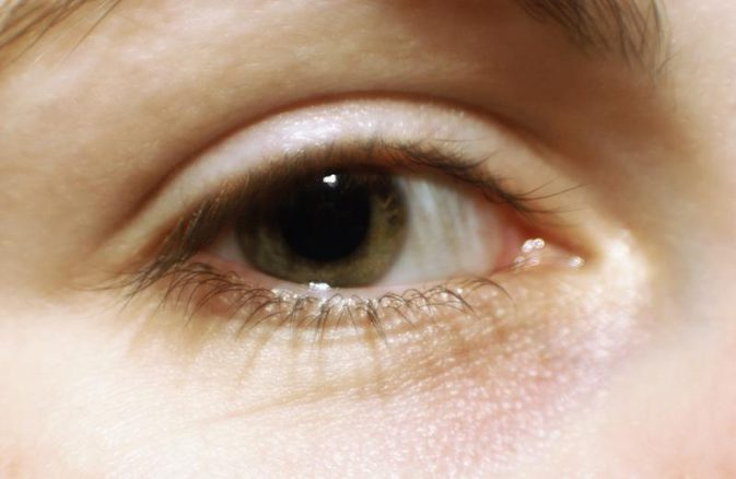 Eyelash loss symptom causes