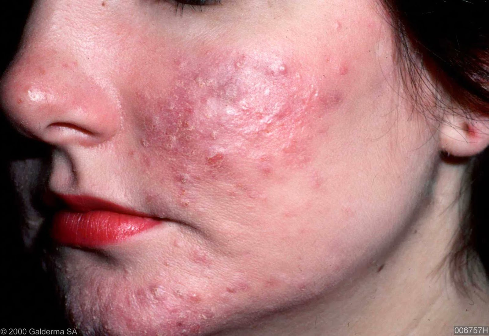 Rosacea Causes And Natural Cures