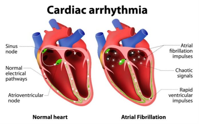 Arrhythmia home remedy