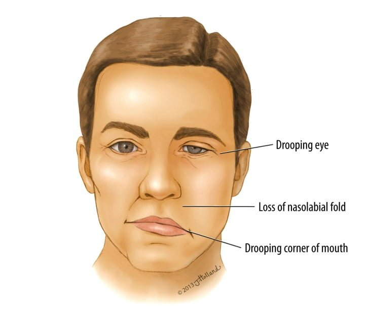 bell's palsy - symptoms, causes and other risk factors, Cephalic Vein