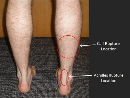 How To Build Up Calf Muscle After Achilles