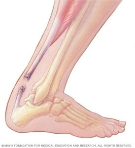 Achilles tendon home remedy