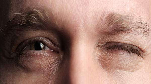eye twitching home remedy, Natural cures for eye twitching