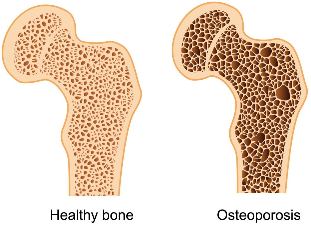 Are There Natural Cures For Osteoporosis