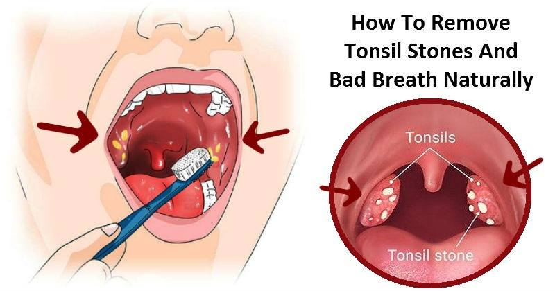 Best Natural Cures For Throat Infection