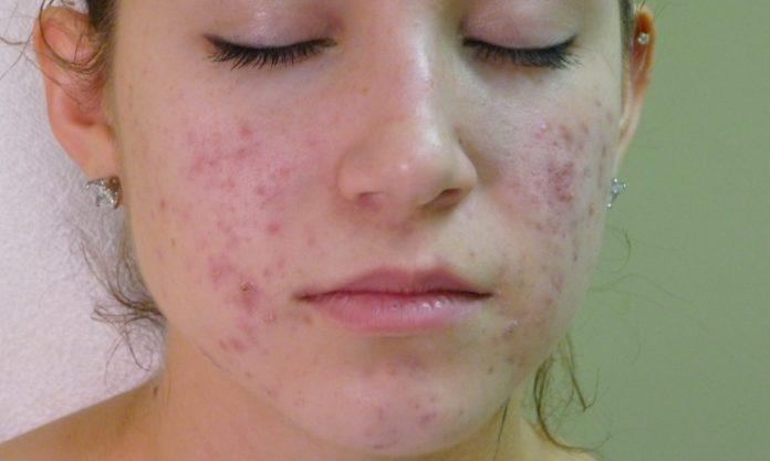 """hyperpigmentation """"title ="""" cicatrices d'acné"""