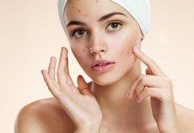 Skin acne
