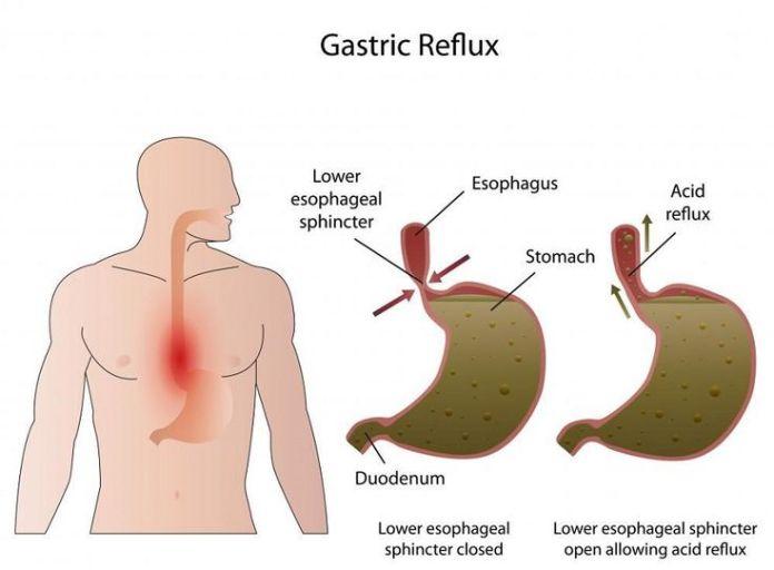 Bile Reflux Treatment Natural