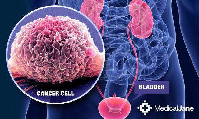 Natural Cures For Stage  Bladder Cancer