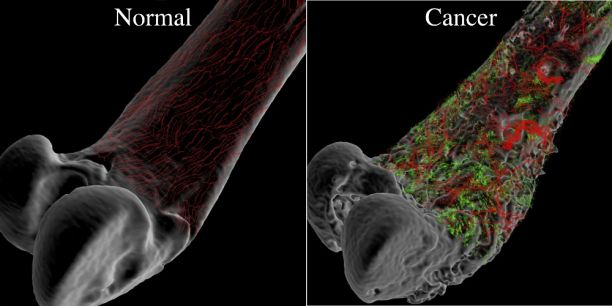 Natural Cure For Sarcoma Cancer
