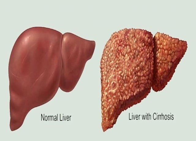 Natural Cirrhosis Of The Liver Cures