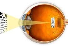 Short sightedness