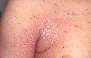 Natural cures for scabies