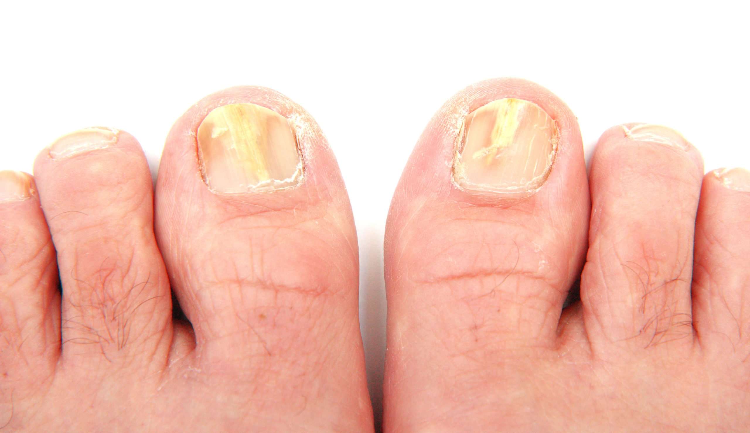 Nail fungus can be treated with turmeric and lemon juice